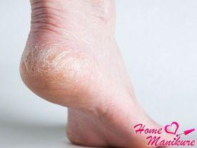 Эффективные методы лечения сухой кожи на пятках
