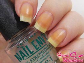О чем сигнализируют желтые ногти на ваших руках?