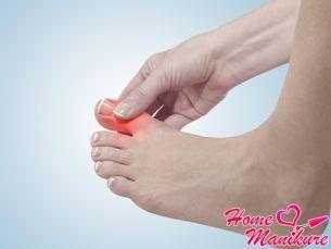 Как решается проблема панариция на ноге?