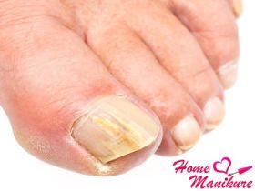Утолщение и огрубение ногтей на ногах