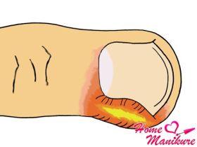 Что делать при нарыве пальца?
