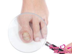 Обзор противогрибковых препаратов для лечения ногтей