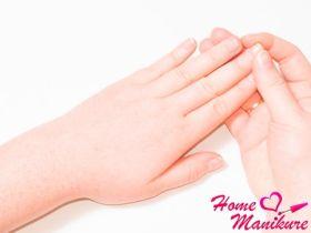 Причины и способы лечения онихолизиса ногтей