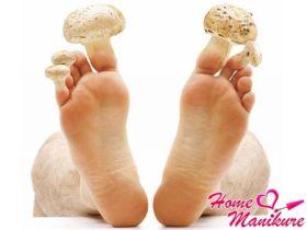 Все о грибке ногтей: симптомы, диагностика и лечение