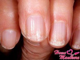 Неприятные проявления онихорексиса ногтей