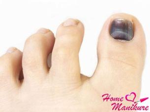 Устранение потемнений на ногтях
