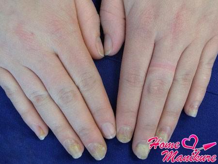Все о псориазе ногтей и методах борьбы с ним