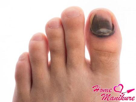 физическая травма ногтя на ноге