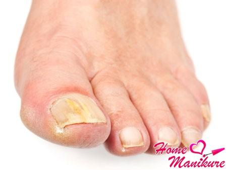 грибковое заболевание ногтей на ногах