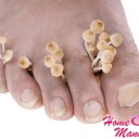 Белые пятна на ногтях рук: причины, значение и лечение