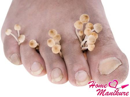 Как избавиться от грибка ногтей на ногах?