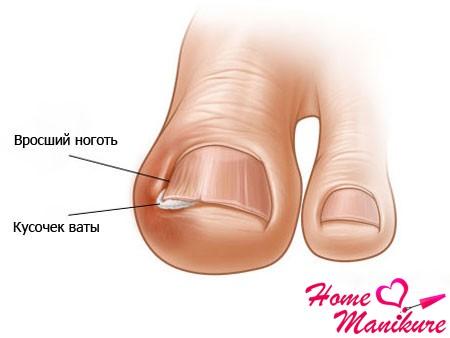 Антибактериальные мази от грибка ногтей