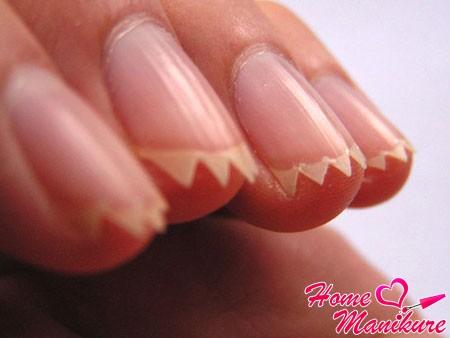 Как бороться с ребристыми и волнистыми ногтями?
