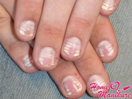 обширные белые полосы и пятна на ногтях