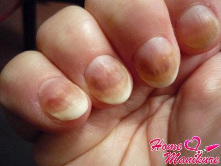 первичные симптомы грибка ногтей
