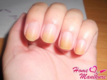 выясните, почему желтеют ногти на руках
