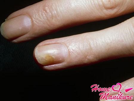 грибок на руках симптомы и лечение фото