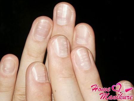Полоски на ногтях: продольные и поперечные, белые и черные полосы