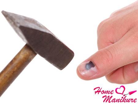 О чем свидетельствует посинение ногтей?