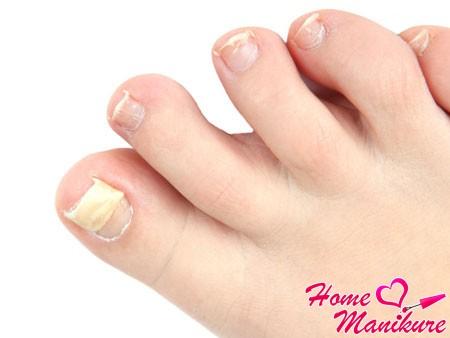 Эффективные методы борьбы с онихомикозом ногтей