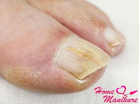 симптомы микоза ногтей