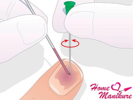 откачка крови после ушиба ногтя