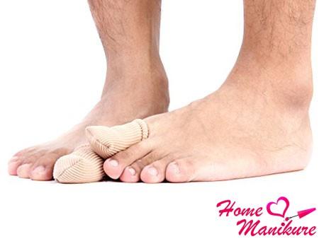 отслоение ногтя на ноге