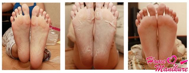 до и после применения китайских педикюрных носочков