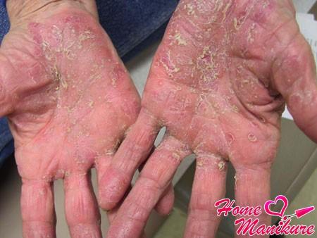 псориаз на коже рук