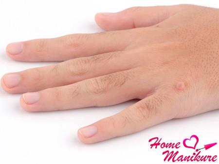 Причины появления и способы лечения бородавок на руках