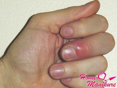 Виды, симптомы и лечение панариция пальца