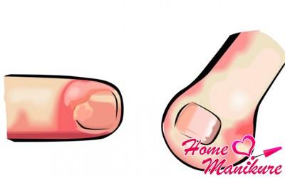 разные виды панариция ногтя