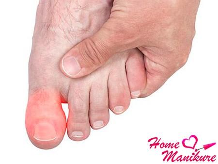 нарыв на пальце ноги у мужчины