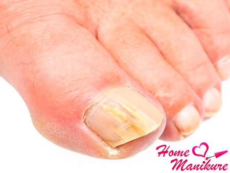 Грибок ногтя ноготь отслаивается