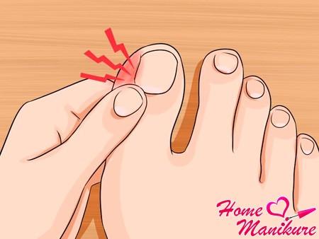 Симптомы и лечение нарыва на пальце ноги