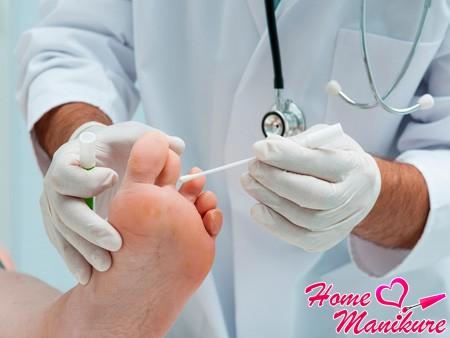 Лечение ногтей на ногах в самаре