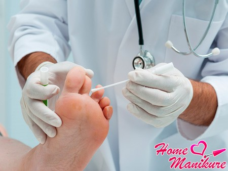 О чем говорят нити мицелия на ногтях?